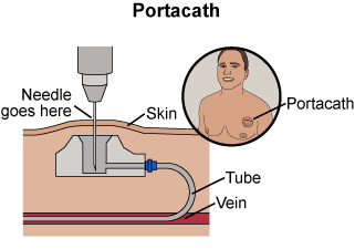 Depiction of an under the skin portacath